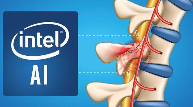 Intel Akıllı Omurga Arayüzü Projesi Duyuruldu